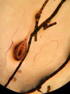 microfauna in acquario